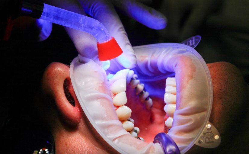 Zły sposób żywienia się to większe niedobory w ustach oraz również ich brak