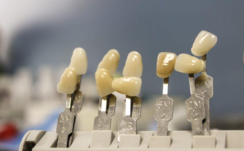 Przepiękne nienaganne zęby także niesamowity przepiękny uśmieszek to powód do płenego uśmiechu.